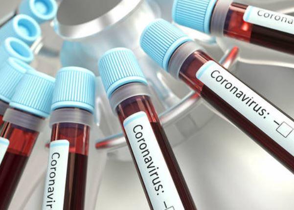 COVID-CORONAVIRUS-ARCHIVIO-ARKIV-4